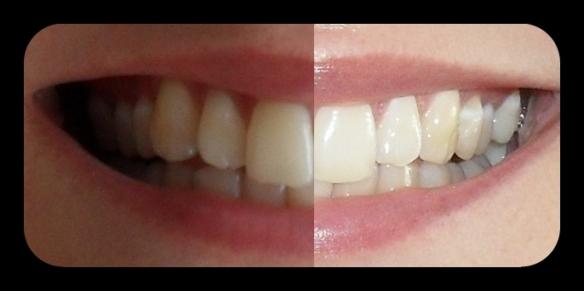 blend-a-med 3D WHITE LUXE Perlenextrakt Zahncreme: Vergleich vorher und nach zwei Wochen Nutzung