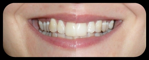 blend-a-med 3D WHITE LUXE Perlenextrakt Zahncreme nach 4 Wochen Nutzung